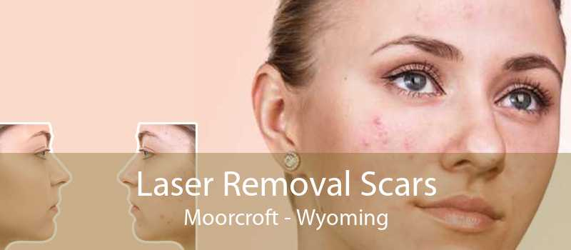 Laser Removal Scars Moorcroft - Wyoming