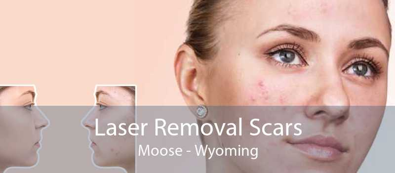 Laser Removal Scars Moose - Wyoming