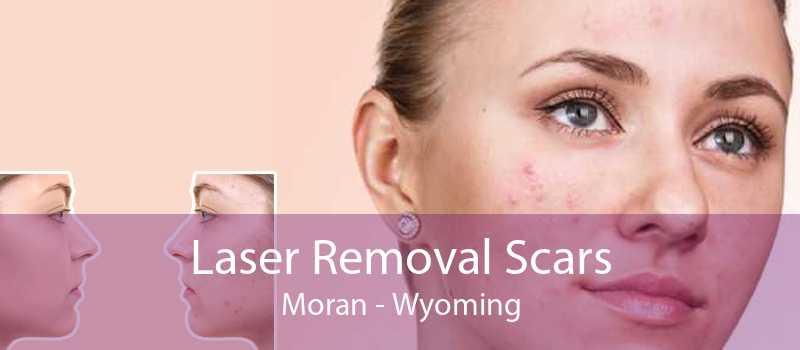 Laser Removal Scars Moran - Wyoming