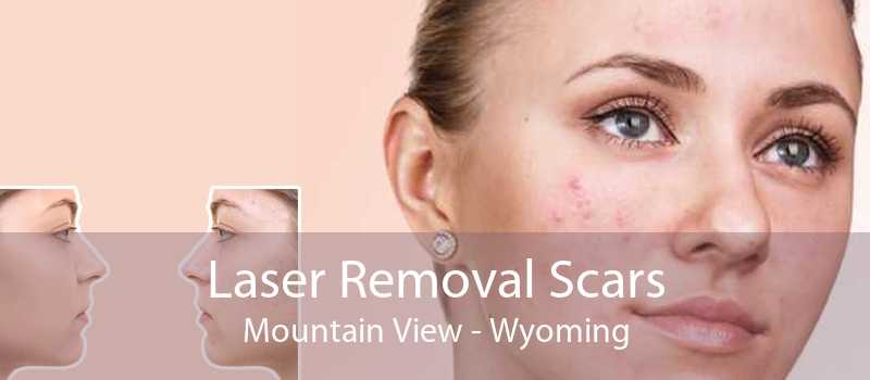 Laser Removal Scars Mountain View - Wyoming