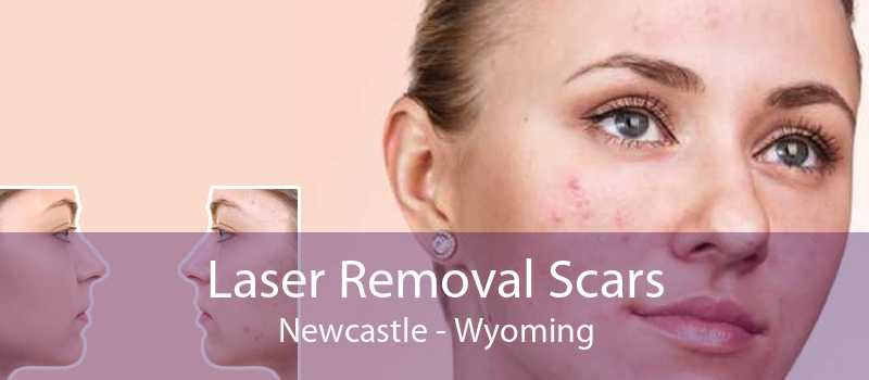 Laser Removal Scars Newcastle - Wyoming