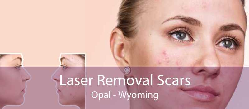 Laser Removal Scars Opal - Wyoming