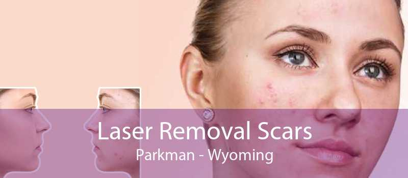 Laser Removal Scars Parkman - Wyoming