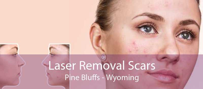 Laser Removal Scars Pine Bluffs - Wyoming