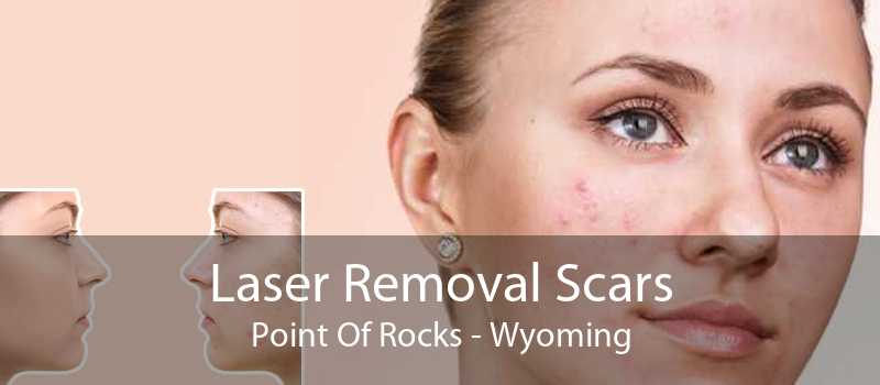 Laser Removal Scars Point Of Rocks - Wyoming