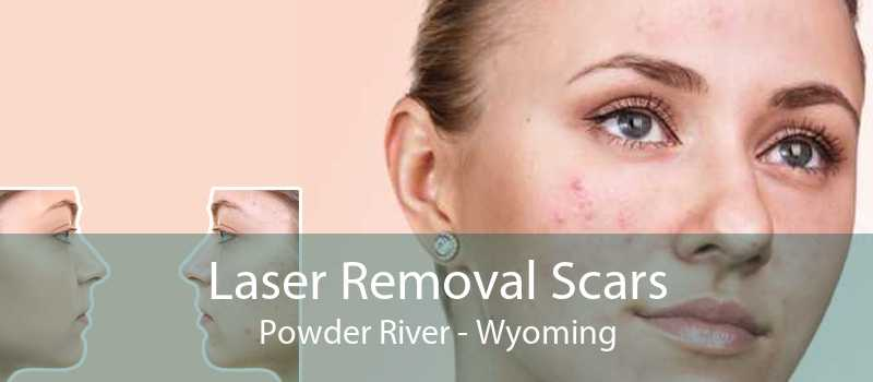 Laser Removal Scars Powder River - Wyoming
