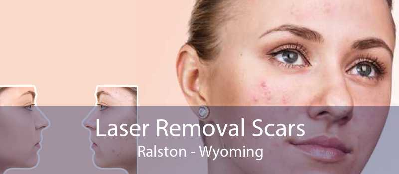 Laser Removal Scars Ralston - Wyoming