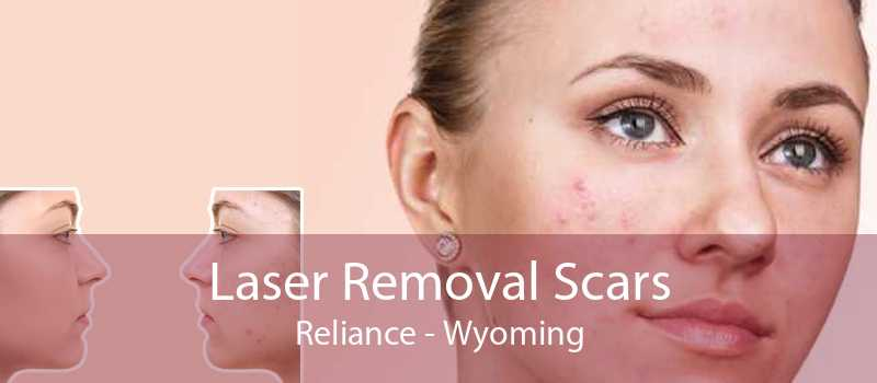 Laser Removal Scars Reliance - Wyoming