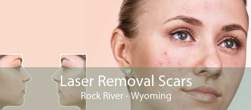 Laser Removal Scars Rock River - Wyoming