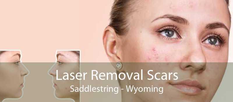 Laser Removal Scars Saddlestring - Wyoming