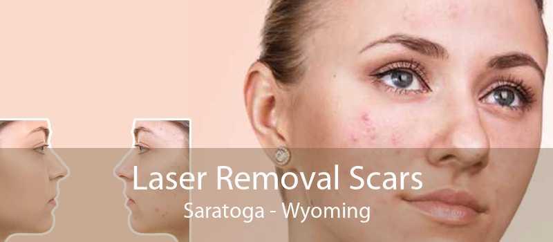 Laser Removal Scars Saratoga - Wyoming