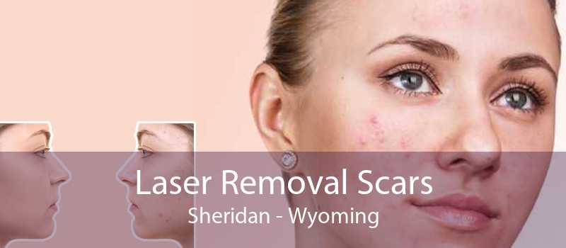 Laser Removal Scars Sheridan - Wyoming