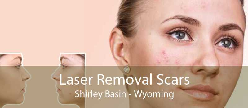 Laser Removal Scars Shirley Basin - Wyoming