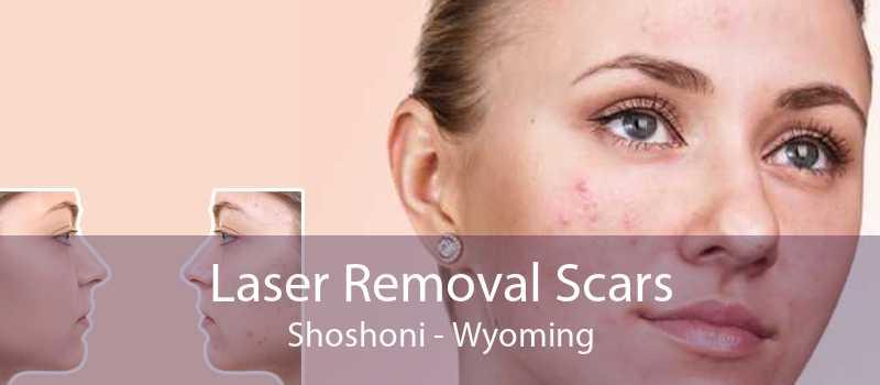 Laser Removal Scars Shoshoni - Wyoming