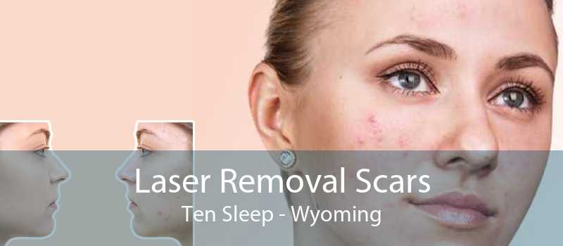 Laser Removal Scars Ten Sleep - Wyoming