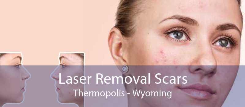 Laser Removal Scars Thermopolis - Wyoming