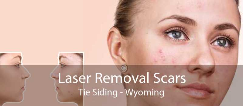 Laser Removal Scars Tie Siding - Wyoming