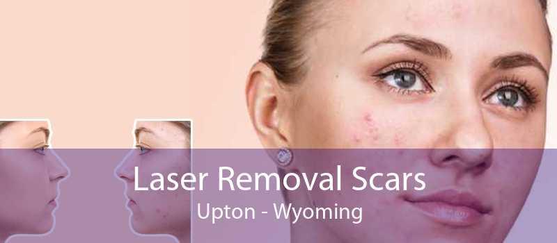 Laser Removal Scars Upton - Wyoming