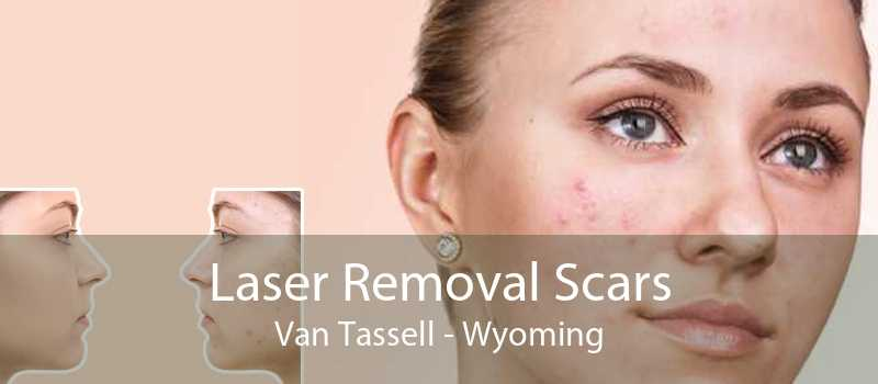 Laser Removal Scars Van Tassell - Wyoming
