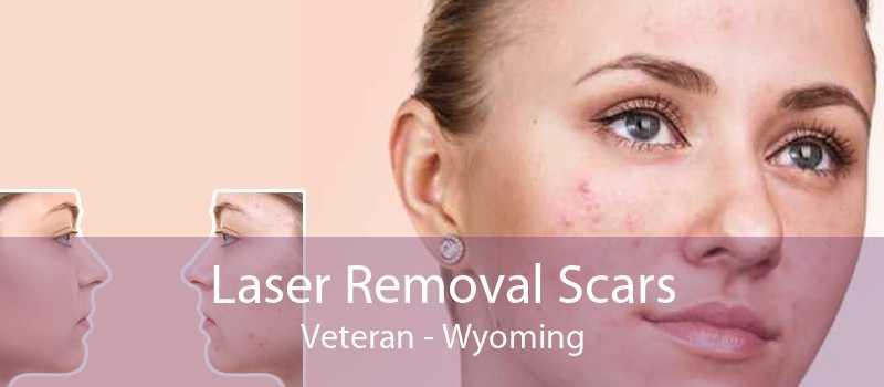 Laser Removal Scars Veteran - Wyoming