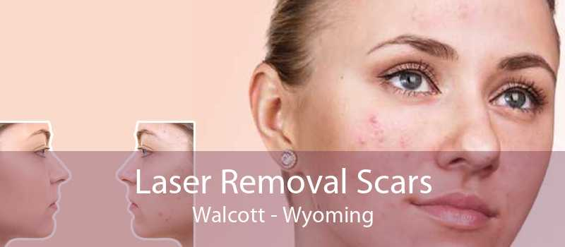 Laser Removal Scars Walcott - Wyoming
