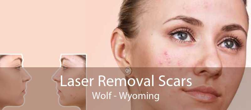 Laser Removal Scars Wolf - Wyoming