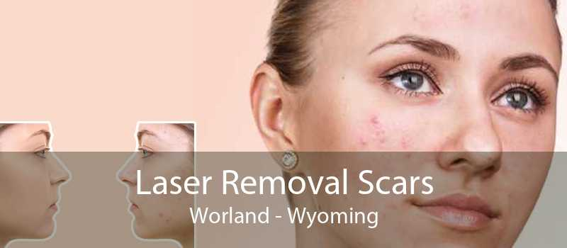 Laser Removal Scars Worland - Wyoming