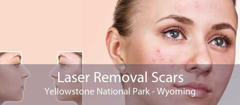 Laser Removal Scars Yellowstone National Park - Wyoming