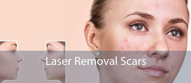 Laser Removal Scars