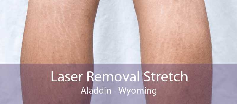 Laser Removal Stretch Aladdin - Wyoming