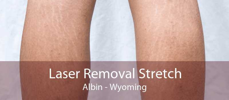 Laser Removal Stretch Albin - Wyoming