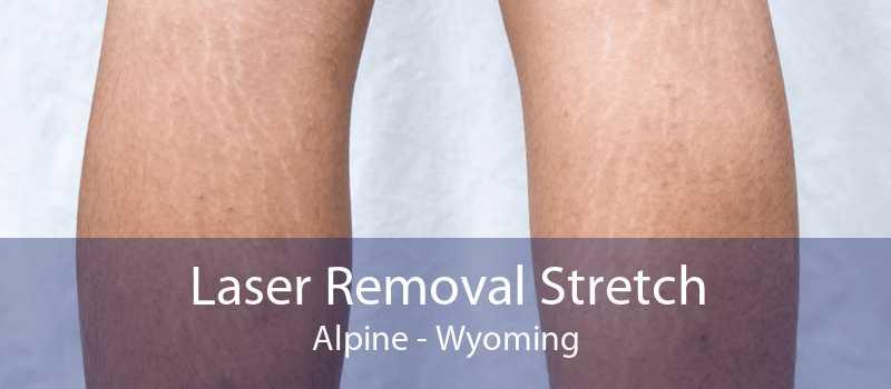 Laser Removal Stretch Alpine - Wyoming