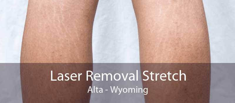 Laser Removal Stretch Alta - Wyoming