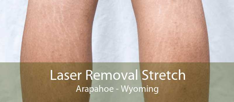 Laser Removal Stretch Arapahoe - Wyoming
