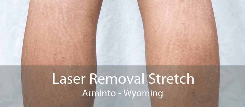 Laser Removal Stretch Arminto - Wyoming