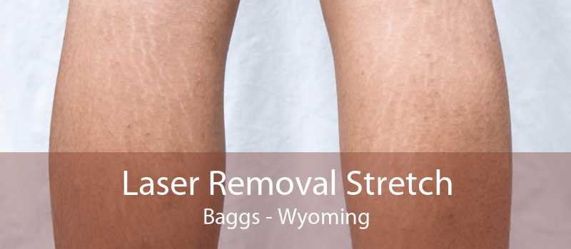 Laser Removal Stretch Baggs - Wyoming