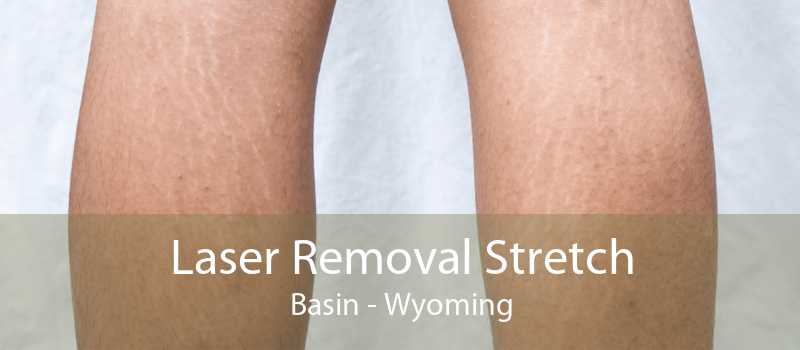 Laser Removal Stretch Basin - Wyoming