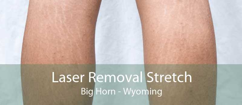 Laser Removal Stretch Big Horn - Wyoming