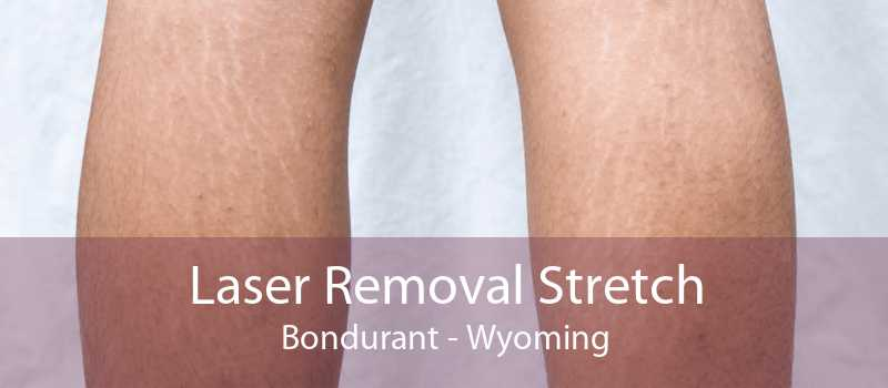 Laser Removal Stretch Bondurant - Wyoming
