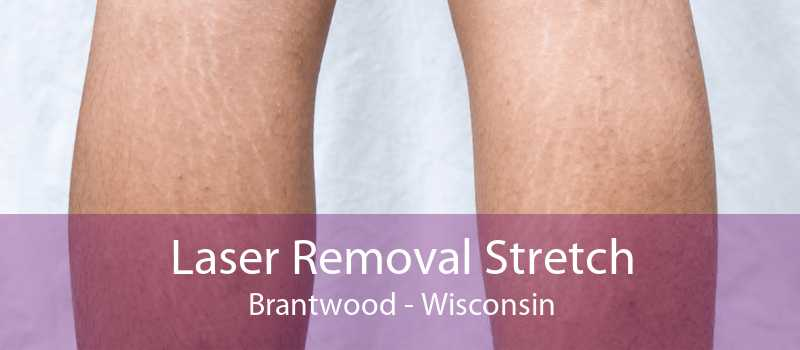 Laser Removal Stretch Brantwood - Wisconsin