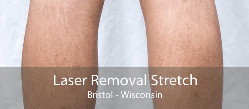 Laser Removal Stretch Bristol - Wisconsin