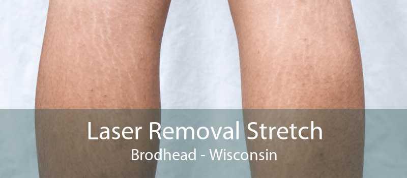 Laser Removal Stretch Brodhead - Wisconsin