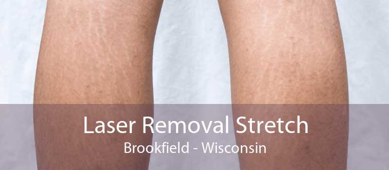 Laser Removal Stretch Brookfield - Wisconsin