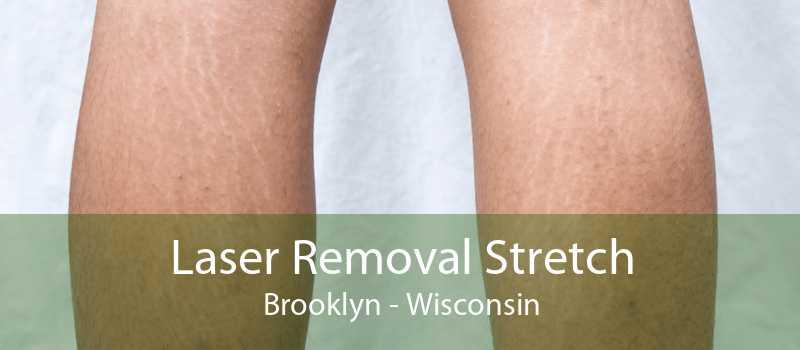 Laser Removal Stretch Brooklyn - Wisconsin