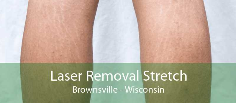 Laser Removal Stretch Brownsville - Wisconsin