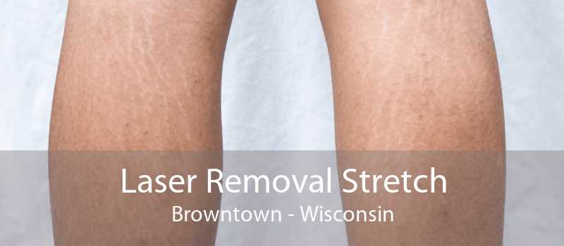 Laser Removal Stretch Browntown - Wisconsin