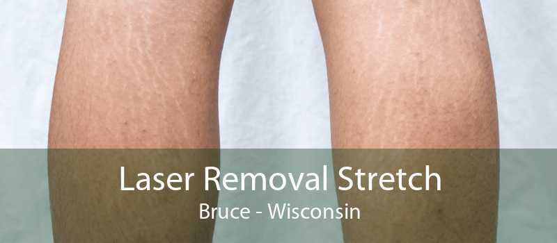 Laser Removal Stretch Bruce - Wisconsin