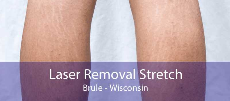 Laser Removal Stretch Brule - Wisconsin