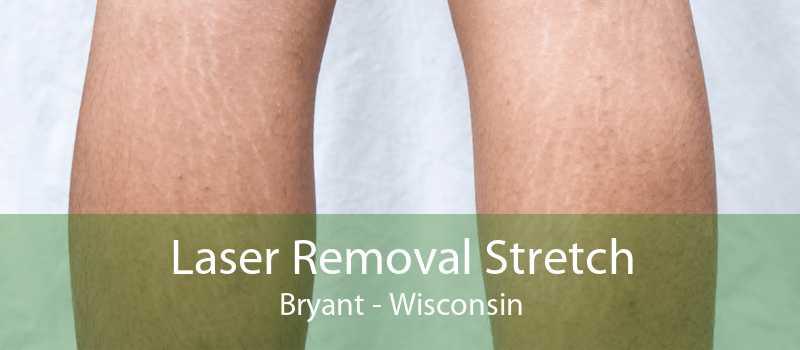 Laser Removal Stretch Bryant - Wisconsin
