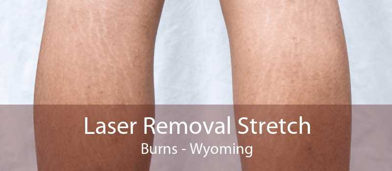 Laser Removal Stretch Burns - Wyoming